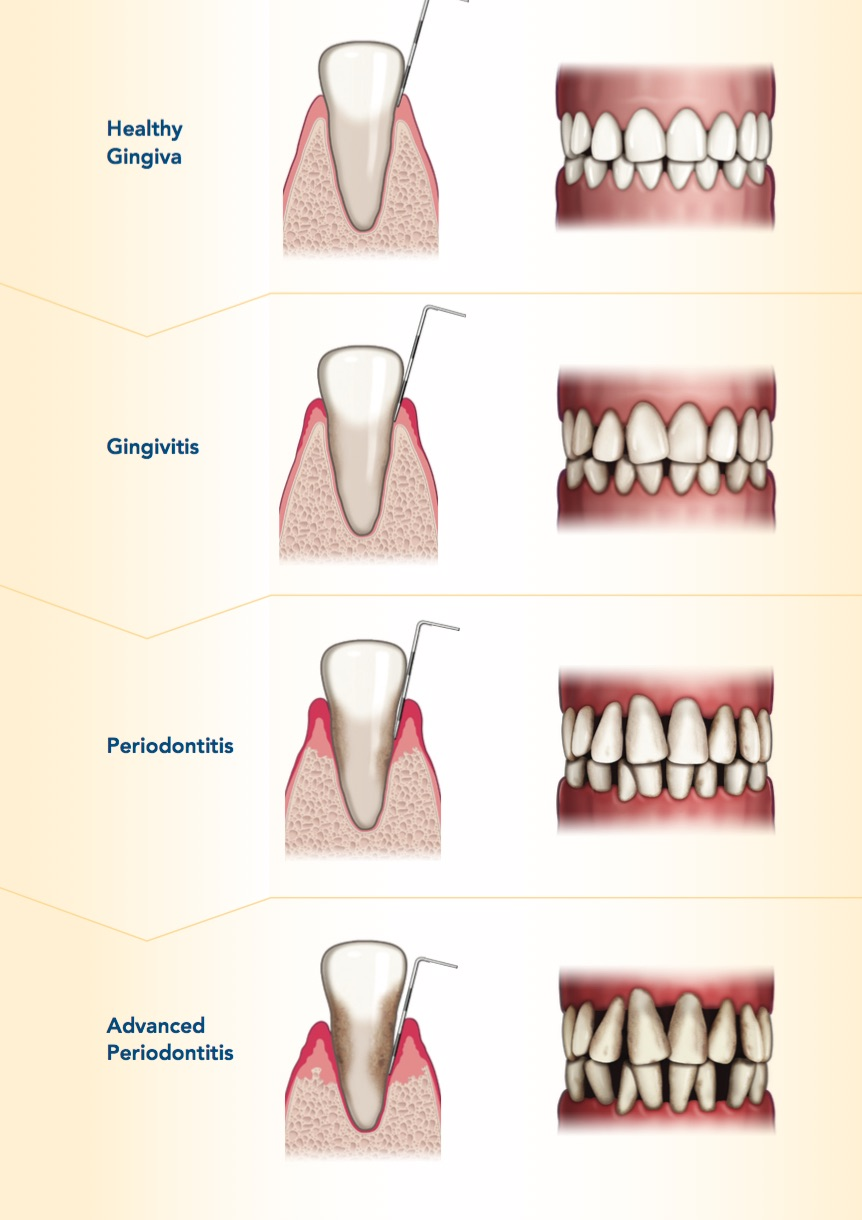 laser to fix gums and treat gum disease recession
