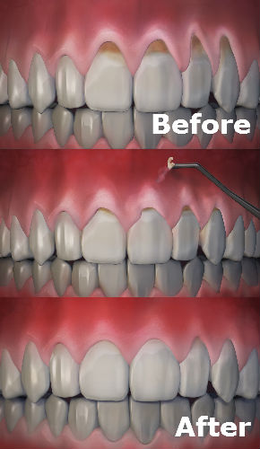 receding gums and gum disease fix by boynton beach periodontist