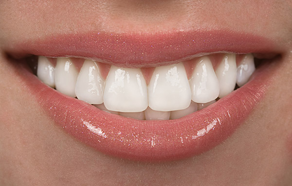 dentist delray performs cosmetic dentistry and veneers