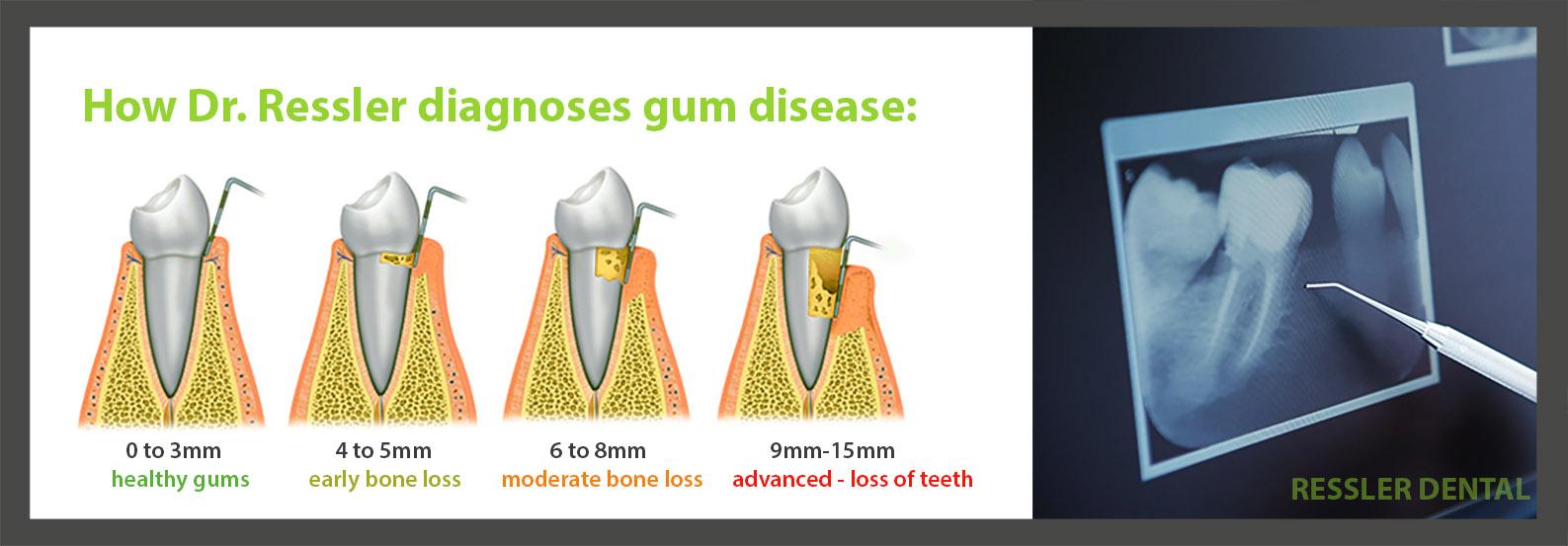 Deep Cleaning Amp Gum Disease Treatment Boca Raton Loose