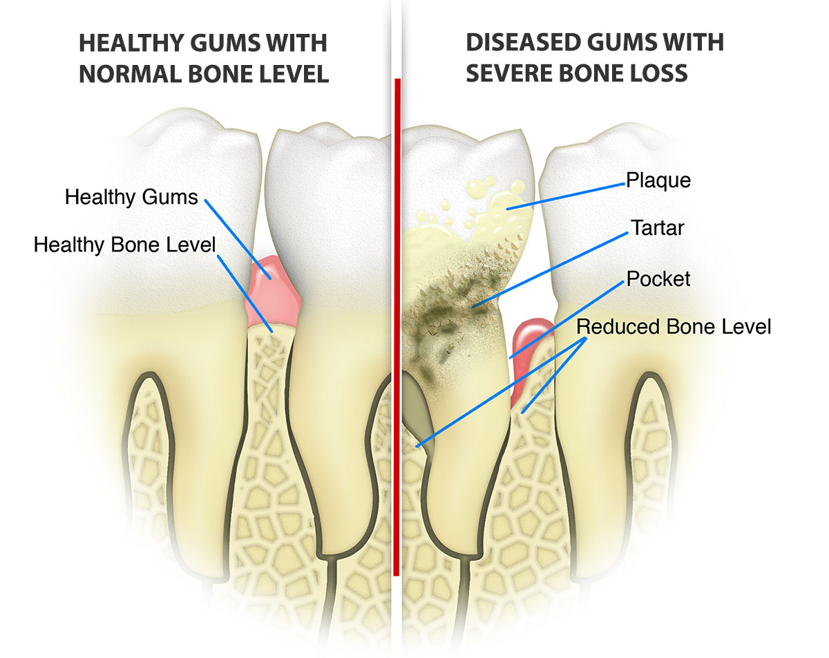 Deep Cleaning & Gum Disease Treatment Boca Raton | loose