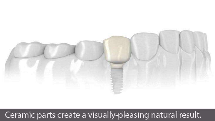 painless dental implants do not hurt