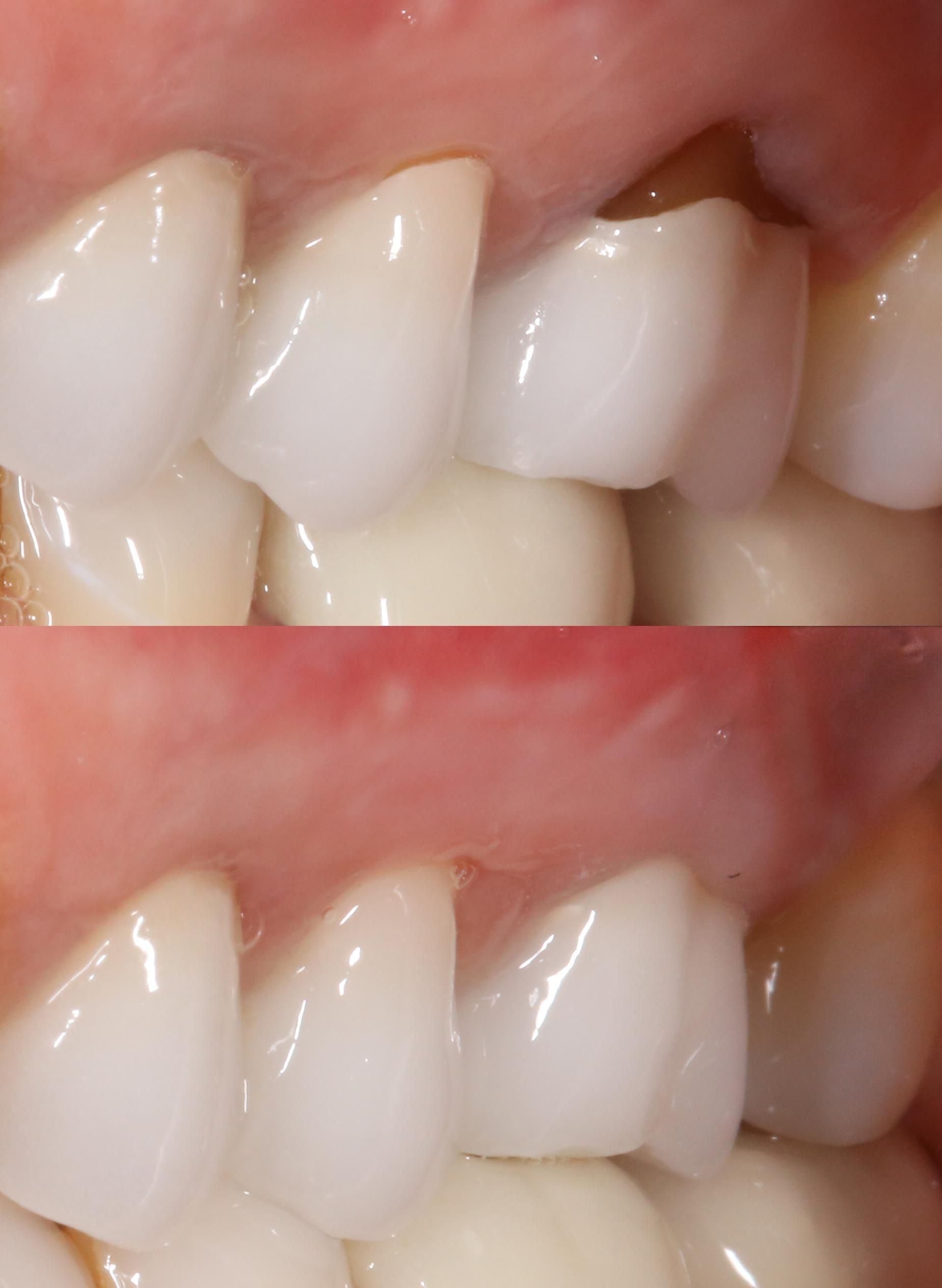 chao pinhole gum graft before and after
