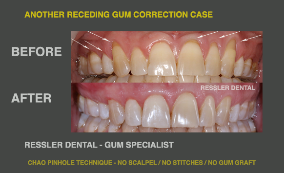 techniques for fixing receding gums with Chao pinhole and gum graft alternative methods